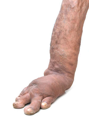Foot disorders from birth, like filariasis. bone diseases