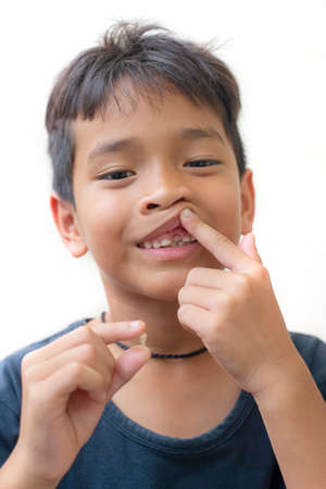 seven year boy showing dropped out milk Tooth. Stock Photo
