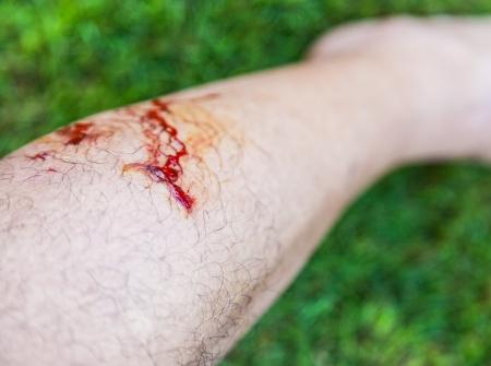 dog bite photo