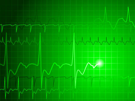 EKG background Ilustracja