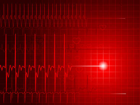 heart attack: Flatline monitor