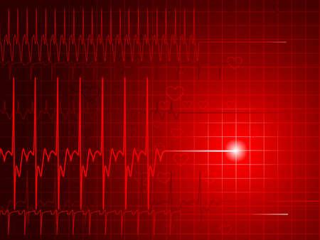 infarto: Monitor de Flatline  Vectores