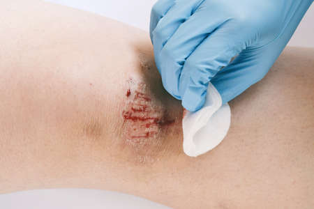 Close-up of bloody gash on knee. Wound treatment with antiseptic.
