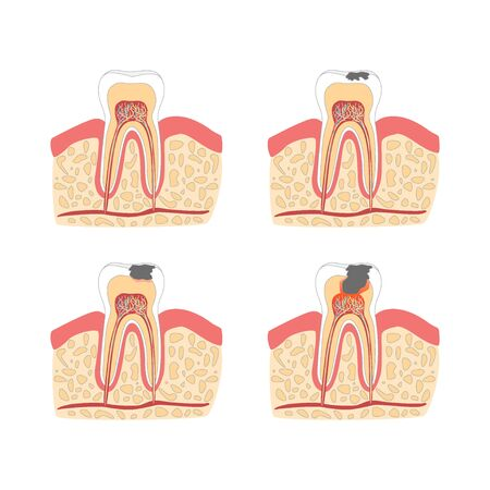 root canal: Cartoon Tooth with Stages of Dental Caries Formation Set. Vector