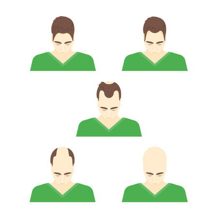 hairline: Cartoon Stages of Hair Loss in Men Problem Of Alopecia Flat Style Design. Vector illustration