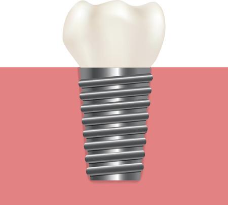 Realistisches menschliches Zahnimplantat. Vektor Standard-Bild - 80269858