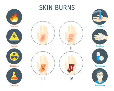 人間の皮膚のやけど情報グラフィック カード ポスター。  イラスト・ベクター素材