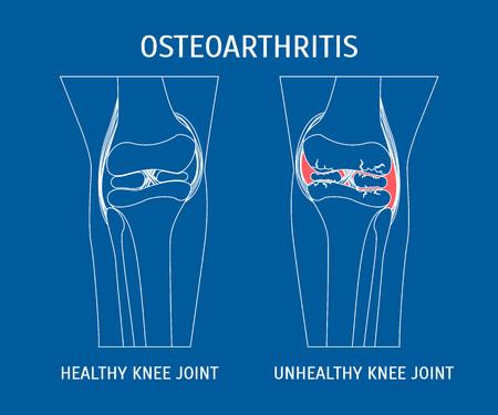 Thin Line Osteoarthritis Healthy and Unhealthy Knee.