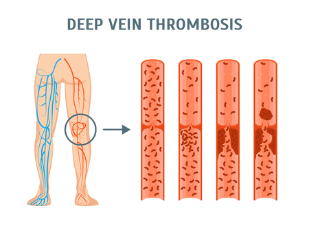 Cartoon Deep Vein Thrombosis Infographics Card Poster. Vector 일러스트