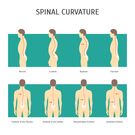Cartoon Back with Scoliosis Card Poster. Vector