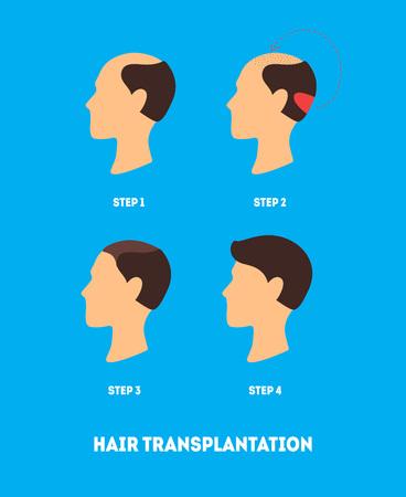 Cartoon Hair Transplant Surgery Card Poster Flyer Alopecia Transplantation Procedure and Growth Step Concept Flat Design Style. Vector illustration
