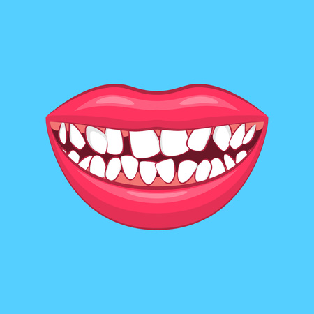 Realistic Detailed 3d Wry Dental Problem on a Blue Health Care and Dentistry Hygiene Concept. Vector illustration of Treatment Standard-Bild - 110005588