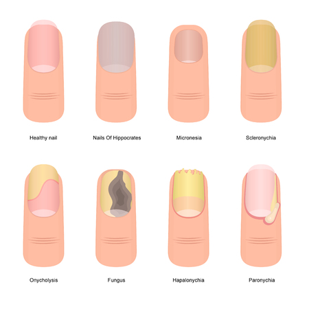 Cartoon Color Nail Diseases Icon Set Element Problem Toenail Concept Flat Design Style. Vector illustration of Nails