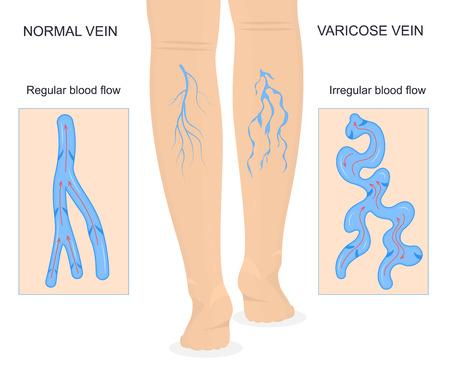 Carta dell'insegna di concetto delle vene varicose con l'assistenza sanitaria della medicina di flusso sanguigno regolare e irregolare degli elementi. Illustrazione vettoriale Vettoriali