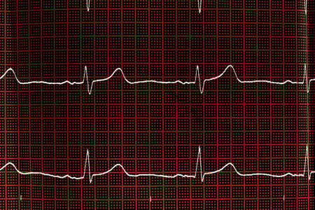 Close up of an electrocardiogram in paper form. Medical healthcare concept. ECG