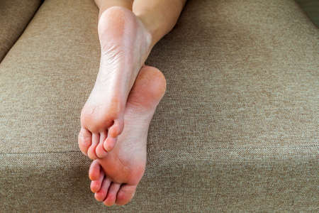 Dry cracked skin of woman feet in bed. Foot treatment. Stock Photo