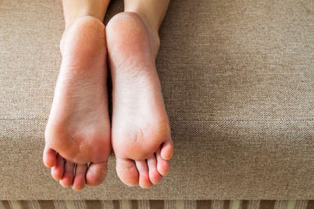 Dry cracked skin of woman feet in bed. Foot treatment. Stockfoto