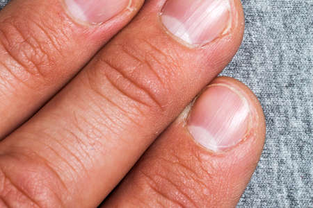 Mens fingers and nails in bad condition close up Banque d'images