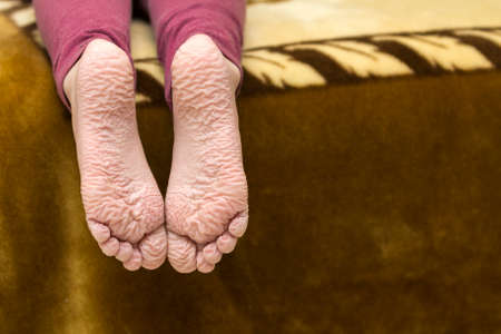 Close-up of children wrinkled feet after long bath
