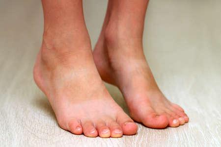Child's feet on parquet laminate wooden texture floor close-up. Healthcare concept
