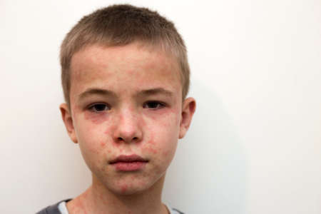 Portrait of sick sad boy child suffering from measles or chicken pox with bumps all over face. Contagious child diseases and treatment.