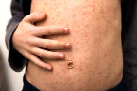 Corps d'enfant malade, estomac avec des taches rouges de rougeole ou de varicelle. Maladies contagieuses de l'enfant et traitement.