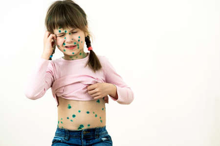 Child girl covered with green rashes on face and stomach ill with chickenpox, measles or rubella virus. Stock Photo