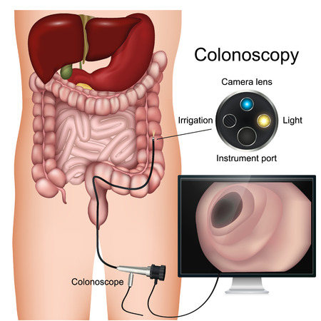 Colonoscopy procedure labeled 3d vector diagram on white background