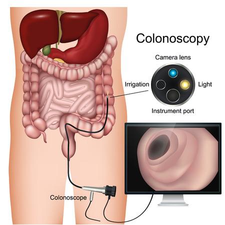 Procedimiento de colonoscopia etiquetado diagrama vectorial 3d sobre fondo blanco.