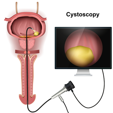 Cystoscopy of the bladder 3d vector illustration on white background