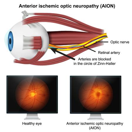 Illustrazione medica di vettore 3d di neuropatia ottica isemica su fondo bianco
