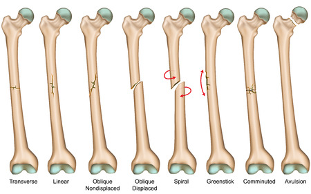 Bone fracture types medical vector illustration