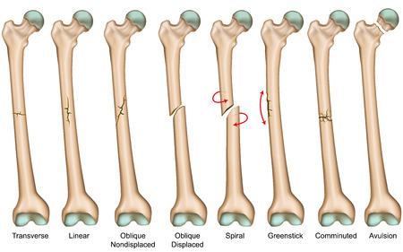 Tipi di fratture ossee illustrazione medica vettoriale Vettoriali