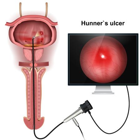 Hunner`s ulcer 3d medical vector illustration on white background Illustration