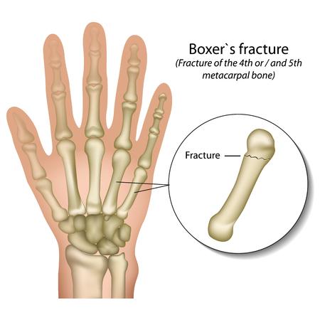 Boxer`s bone hand fracture medical vector illustration