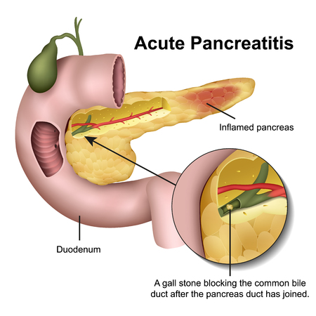 Akute Pankreatitis medizinische 3D-Vektor-Illustration auf weißem Hintergrund