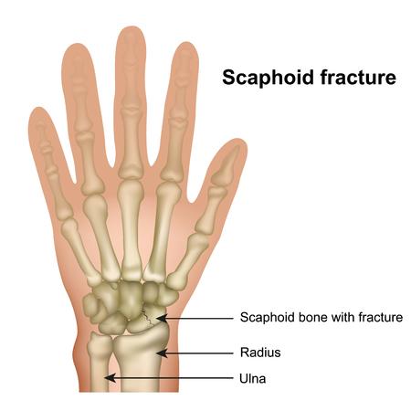 Illustrazione medica di vettore di frattura dell'osso dello scafoide su fondo bianco