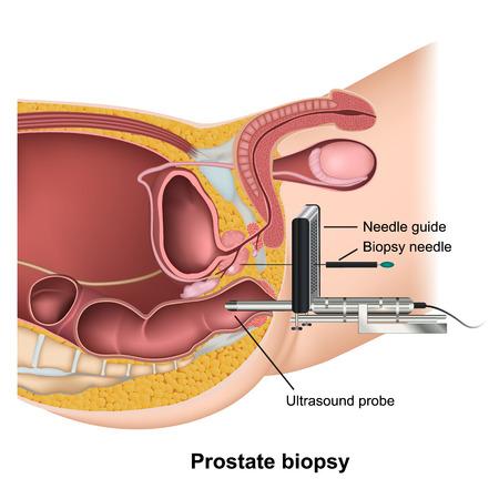 Prostate biopsy medical healthcare vector illustration on white background