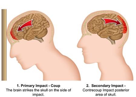 Coup - contrecoup medical vector illustration on white background