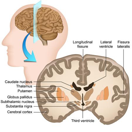 Koronaler Abschnitt der medizinischen Vektorillustration des menschlichen Gehirns