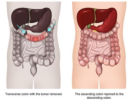 Transverse colectomy 3d medical vector illustration