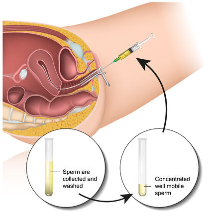 Intrauterine insemination pregnancy medical vector illustration Çizim