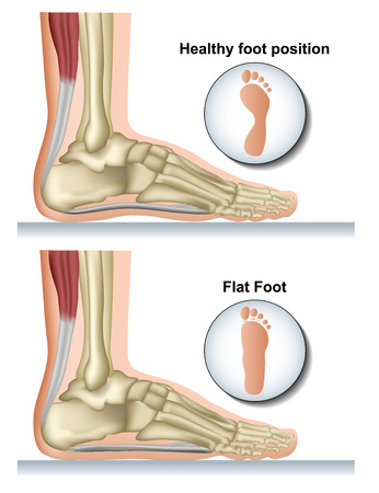 Flat foot medical vector illustration on white background Ilustração