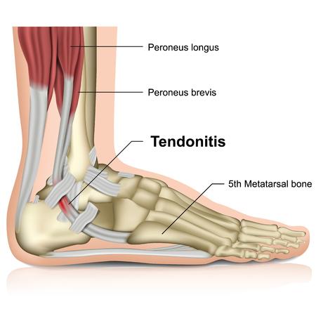 tendinitis peronea, ilustración de vector médico 3d de la articulación del tobillo