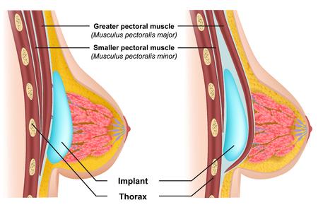 Breast implant insertion medical vector illustration Illustration