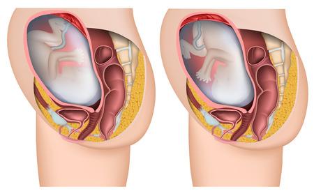 Fötus Position medizinische 3D-Vektorillustration Vektorgrafik