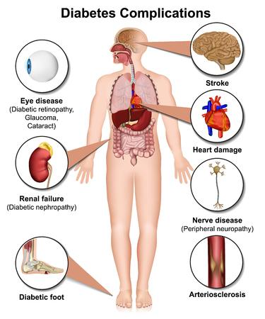 Complicazioni del diabete e malattie mediche 3d illustrazione vettoriale su sfondo bianco Vettoriali