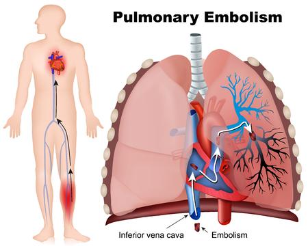 Illustrazione medica di embolia polmonare con descrizione su fondo bianco Vettoriali