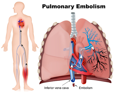 Pulmonary embolism medical illustration with description on white background
