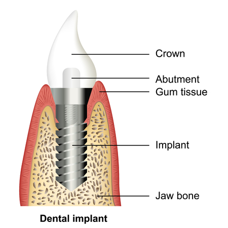 Dental implant medical vector illustration on white background